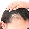 Hair Treatments to overcome Hair Loss